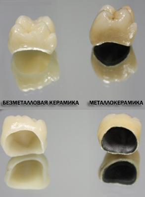 виды виниров на зубы фото