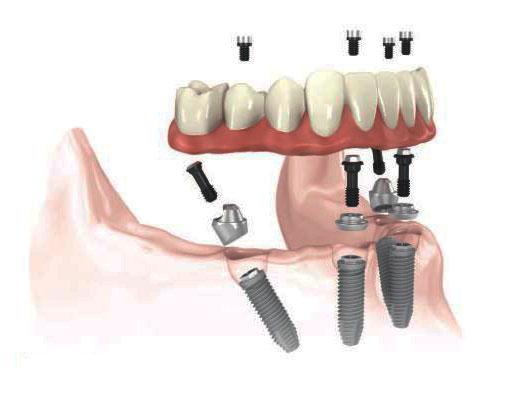 Полная имплантация челюсти