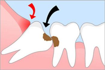 Удаление ретинированного зуба мудрости